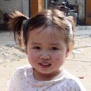 Zhang, Yixuan - before surgery